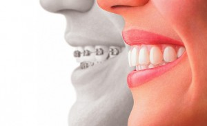 Get rid of tooth problems with the help of cosmetic dentists in Boston